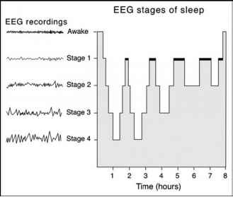 Diagram Demonstrating Sleep Stages Eeg