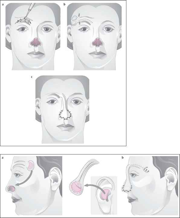 What Total Composite Flap Facelift