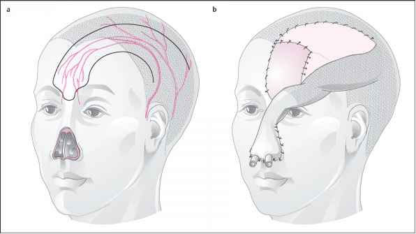 Median Forehead Flap