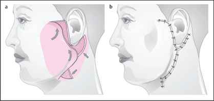 Opposing Transposition Flaps - Facial Plastic Surgery