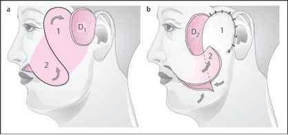 Lateral Cheek Rotation of Weerda 1980c - Facial Plastic Surgery