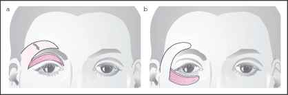 Forehead Flap Eyelid Reconstruction