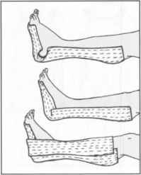 Olecranon Stretches