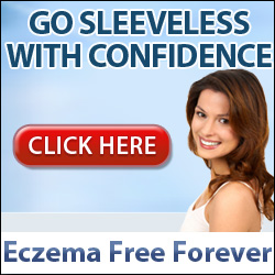 Eczema Free Forever by Rachel Anderson