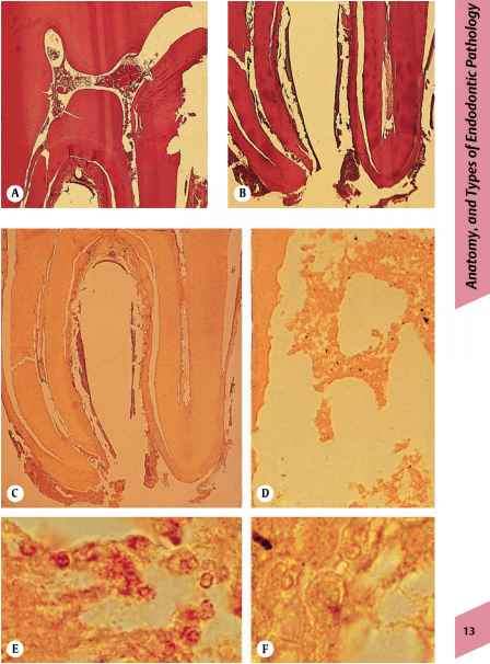 Bacteria Induced Inflammation Histology