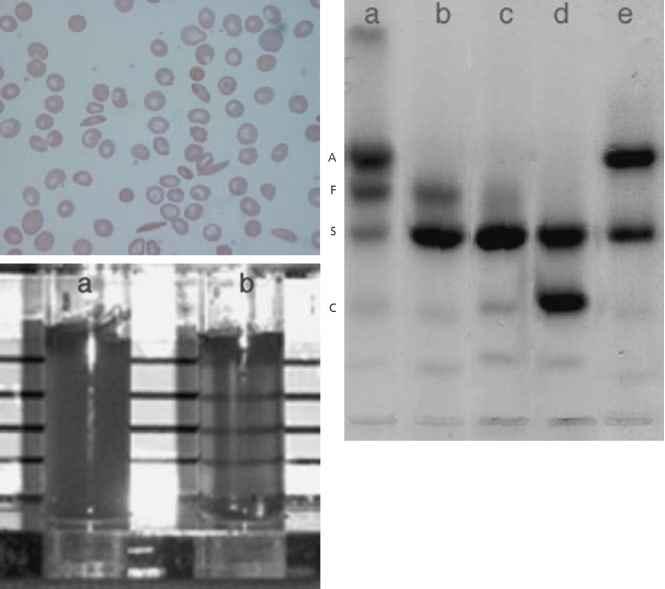 Hbas Hbaa And Hbsc Electrophoresis