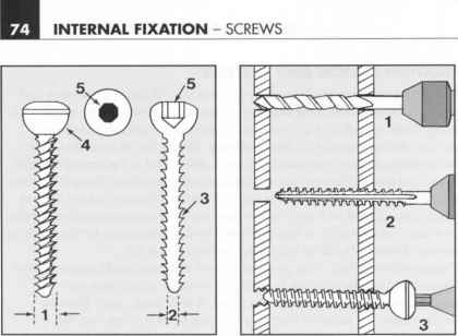 Internal Fixation Device