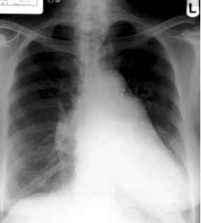 Pulmonary Arteryenlargement