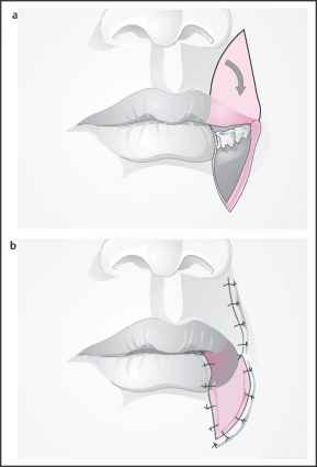 Estlander Flap Lip Reconstruction