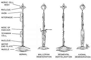 Well Diagram Wallerian Degeneration