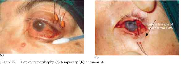 Lateral Tarsorrhaphy Opthalmology European Medical