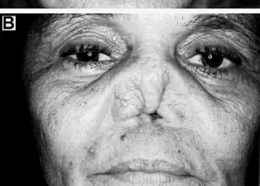 Fig 8. Mucosal leishmaniasis: late destruction of nasal septum ...